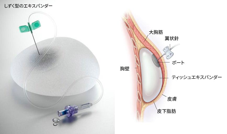 乳房再建:シリコン